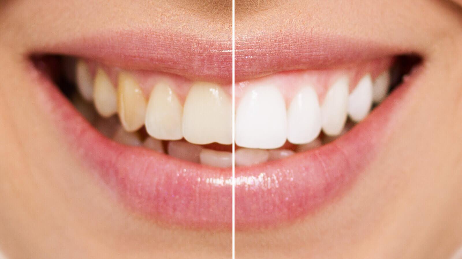 Strahlend weiße Zähne durch moderne Bleaching Verfahren.