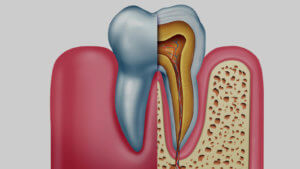 Gesund Zahnwurzeln helfen Zähne zu erhalten