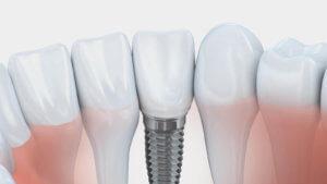 Implantat Köln