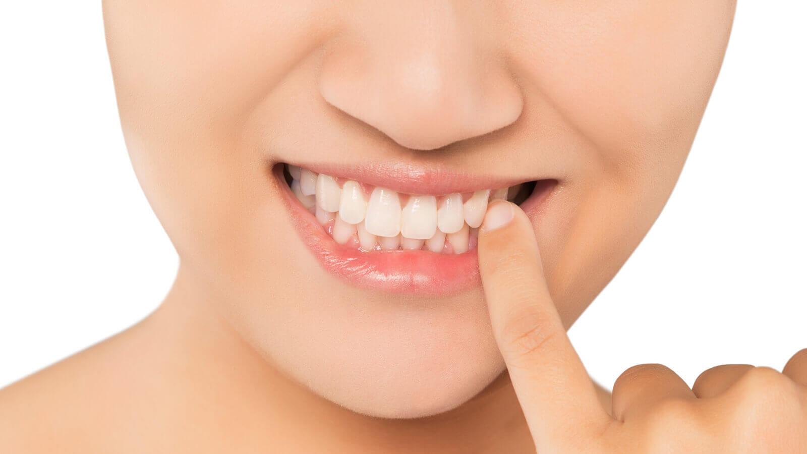 Parodontitis ist eine bakterielle Entzündung des Zahnfleischs